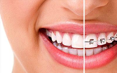 Качественная ортодонтическая стоматология в Харькове